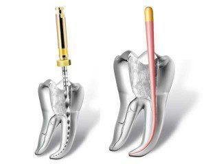 Tratament Endodontie