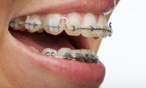 Tratamiento ortodoncia