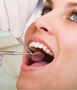 Dental prophylaxis